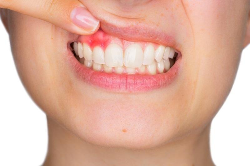 urgent dental care Leeds